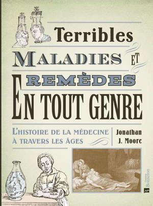 Terribles maladies et remèdes en tout genre : l'histoire de la médecine à travers les âges