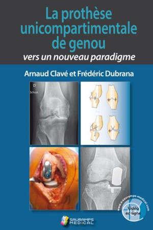 La prothèse unicompartimentale de genou : vers un nouveau paradigme